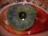 Subconjunctival Haemorrhage_fEATURE