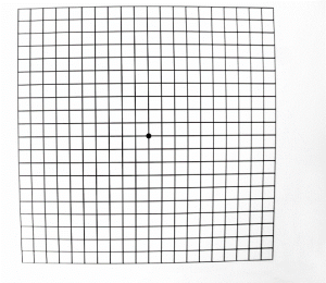An Amsler Grid as seen by a patient with a normal macula