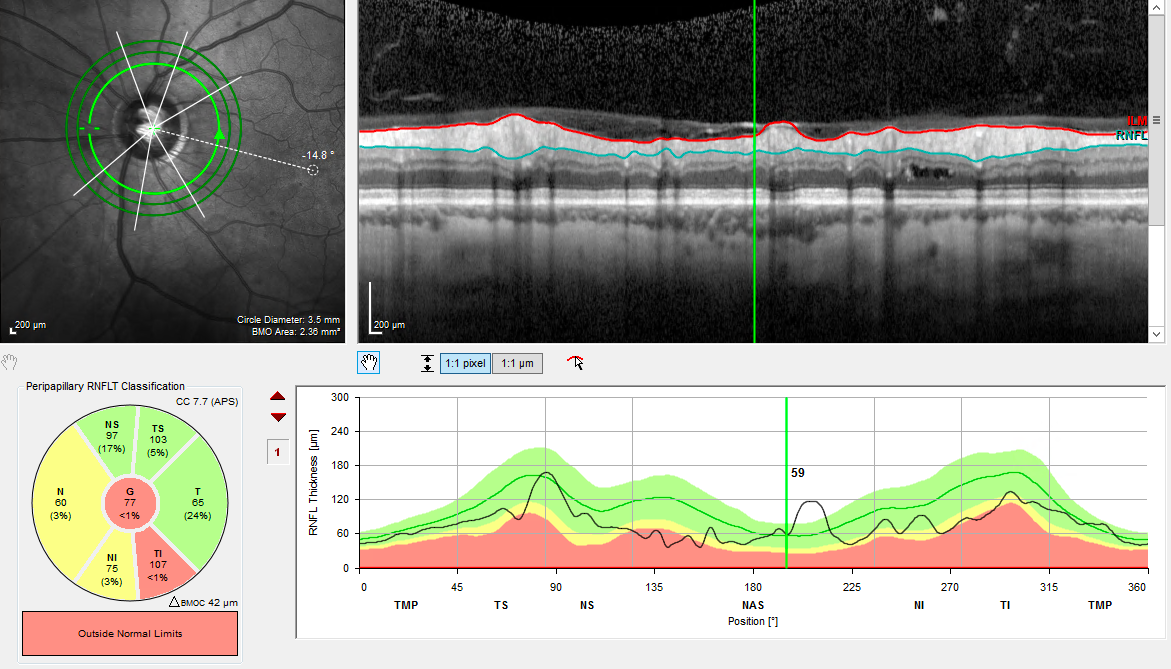 OCT scan of an optic nerve in a patient with glaucoma