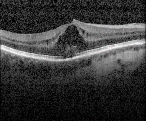 Macula swelling after cataract surgery
