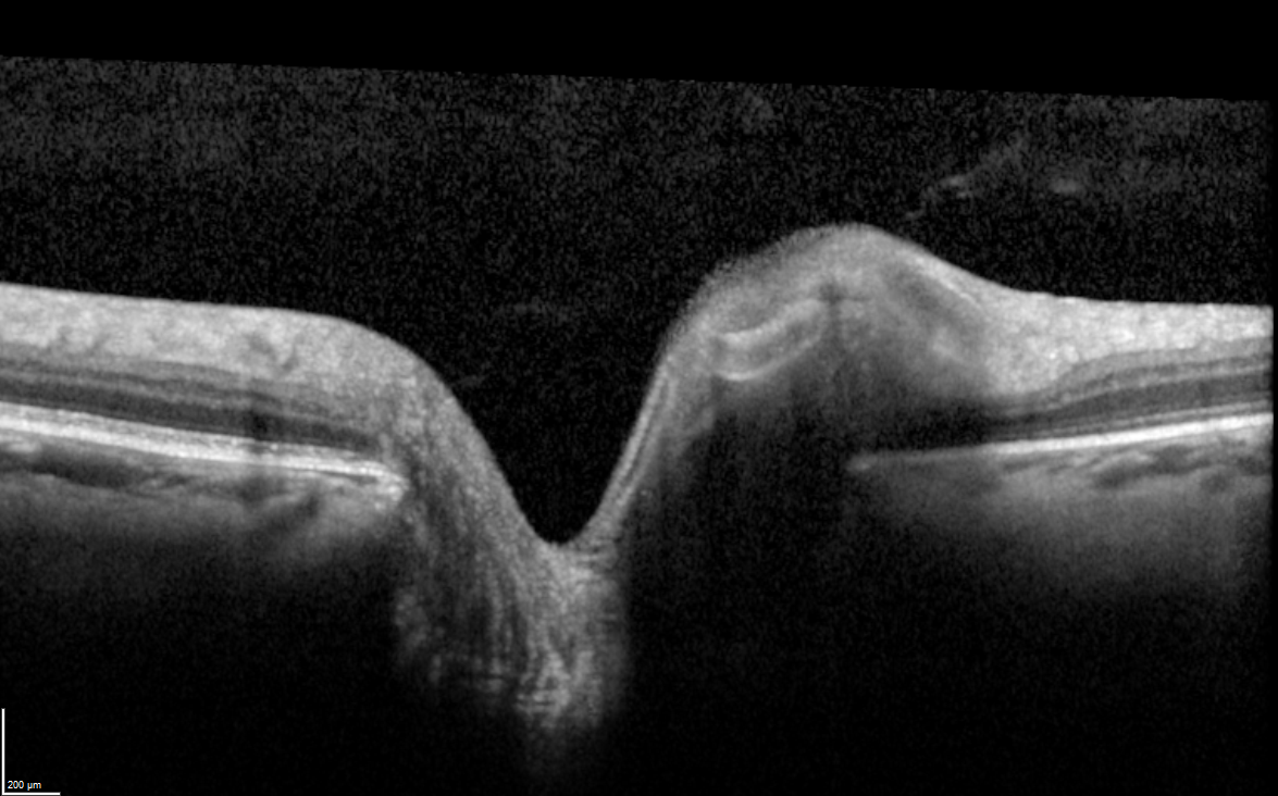 Spectralis OCT image of the optic nerve